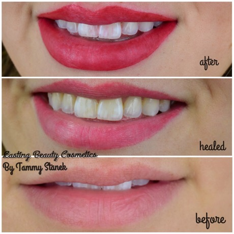 Permanent Lip Color Madison Wisconsin